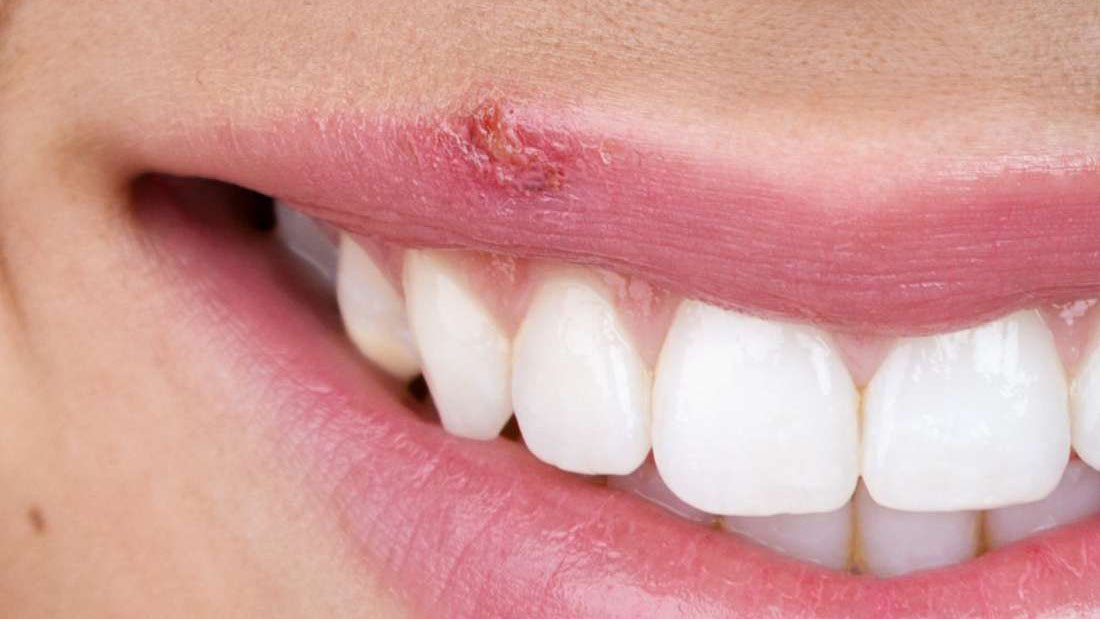 smiling lip with a cold sore